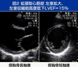 図2 拡張型心筋症 左室拡大…